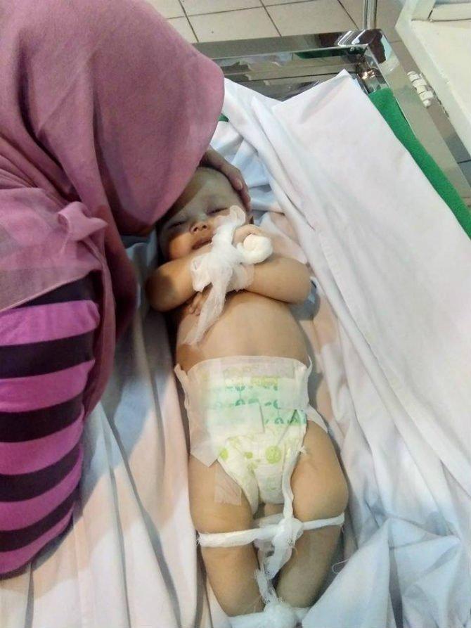 ibu indah dan bayi hafiz yang meninggal karena asap rokok