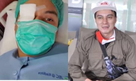 Kesakitan Idap Katarak, Baim Wong Tawarkan Operasi Katarak Gratis bagi Penderita Tak Mampu